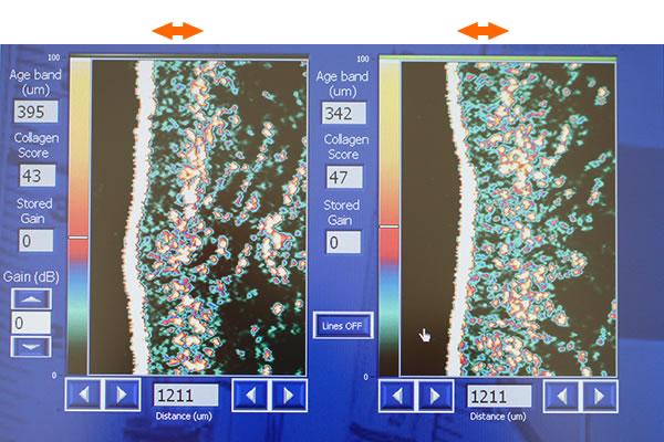 ダーマラボによる肌コラーゲンの測定画像