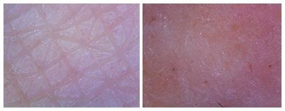 肌のマイクロスコープ画像