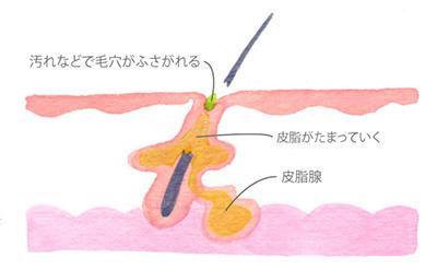 白ニキビ、黒ニキビ(ニキビの初期段階)の画像