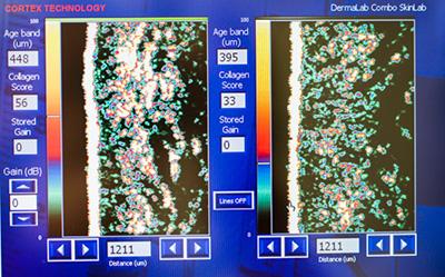 ダーマラボによる肌コラーゲン量の画像