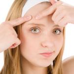 ニキビを完治させる4つの症状別スキンケア方法