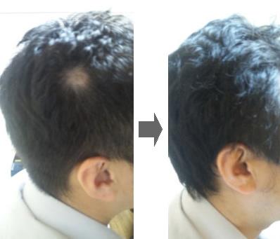プラセンタで円形脱毛症が治った事例の画像