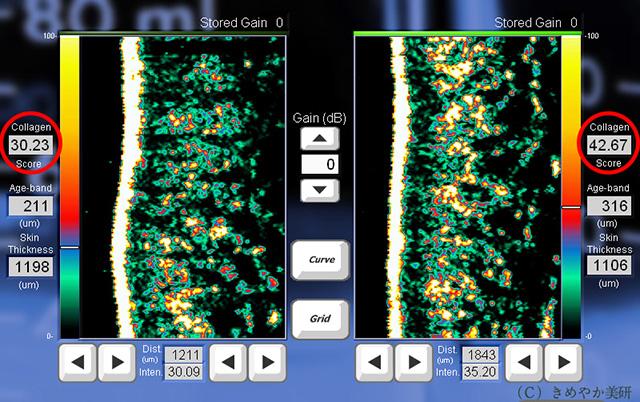 コラーゲン測定の超音波画像