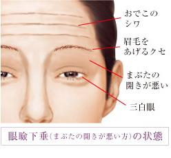 眼瞼下垂の説明の画像