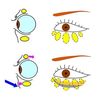 目の下の眼窩脂肪が前にでる画像