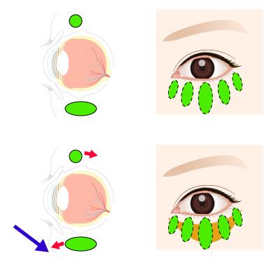 目の下の眼窩脂肪が前にでるの画像