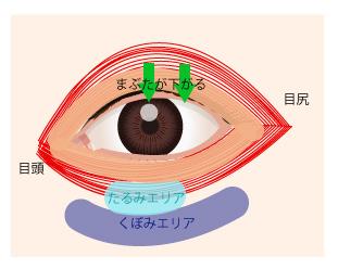 眼輪筋の位置とたるみやすいところの画像