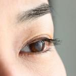 目のたるみの原因と4つの解消方法|まぶたと目の下のたるみ別
