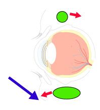 眼窩脂肪の動きの画像