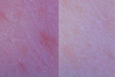 コラーゲンによる肌キメの改善の写真画像