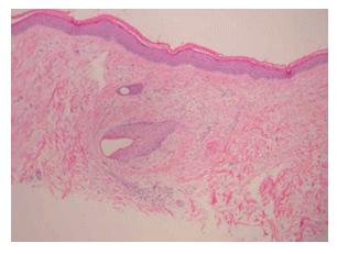 壊血病の肌の画像