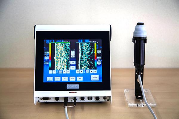 コラーゲン測定器ダーマラボの画像