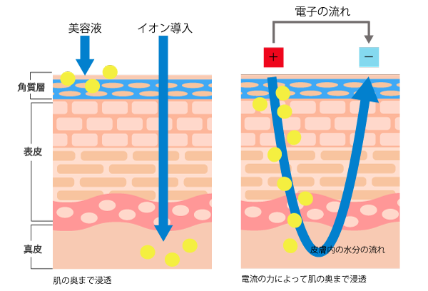 美顔器イオン導入皮膚断面の画像
