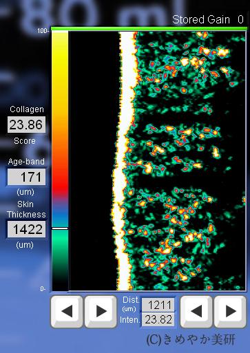 KYさんの肌コラーゲン測定画像
