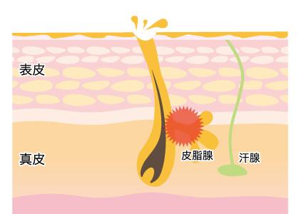 オイリー肌の画像