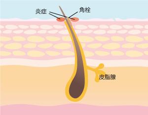 ニキビ肌の画像