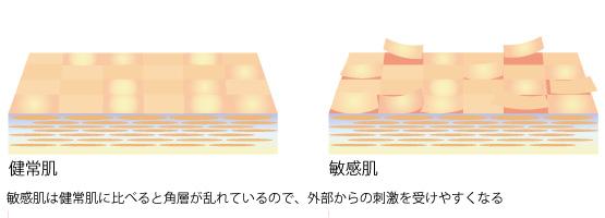 敏感肌の角層の画像
