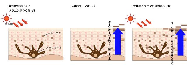 シミの仕組みの画像