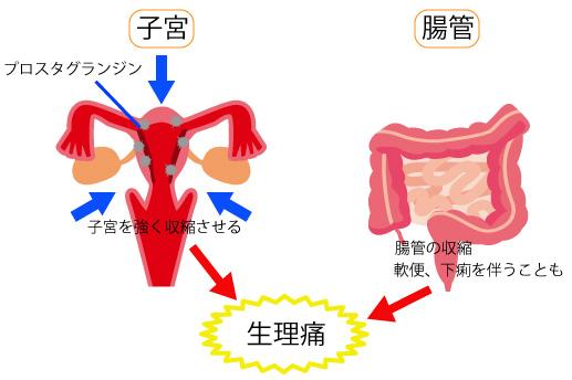 生理前の腹痛の画像