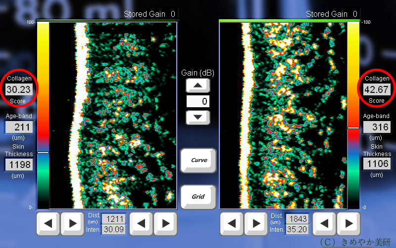 コラーゲンの密度の画像