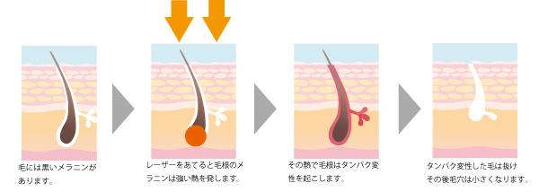 レーザー脱毛の説明の画像