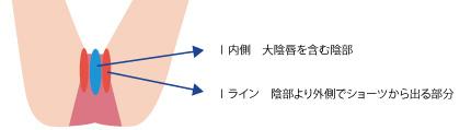 Iラインの範囲の画像