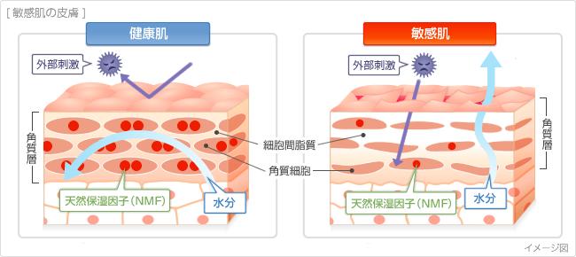 敏感肌の原因の画像
