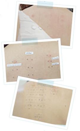 皮膚科のパッチテストの画像