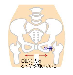 骨盤O脚の画像