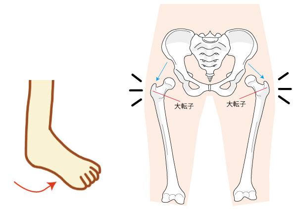 ねじれ歩行骨盤の画像