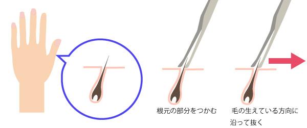 指毛の抜き方の画像