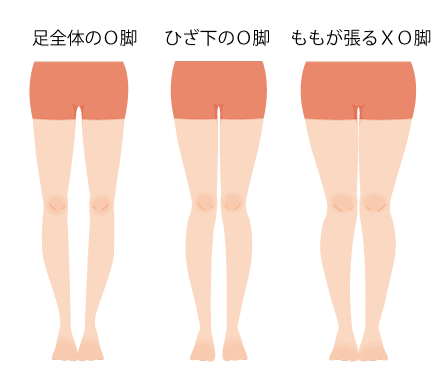 O脚種類の画像