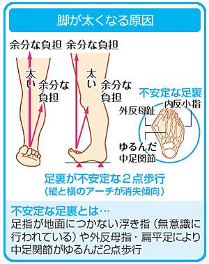 足が太くなる原因の画像
