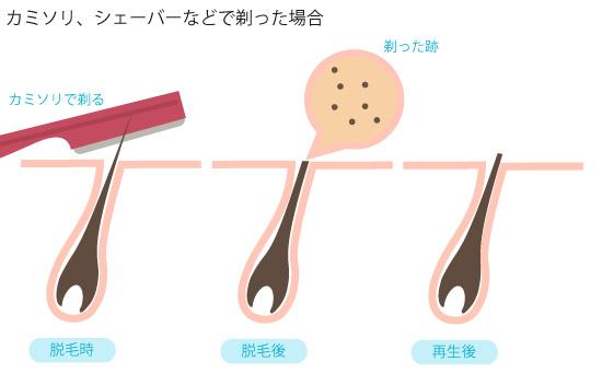 カミソリ、シェーバーなどで剃った場合の脱毛の画像