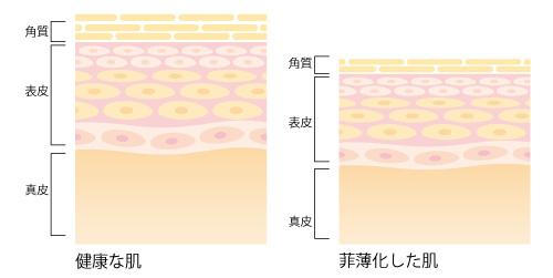 菲薄化した肌の画像