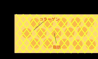 セルライトの画像