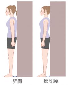反り腰と猫背の画像