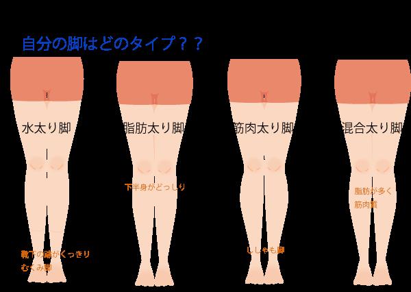 太ももが太い原因の画像