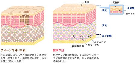 肌の断面図の画像