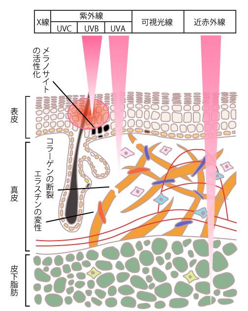 紫外線の害の画像