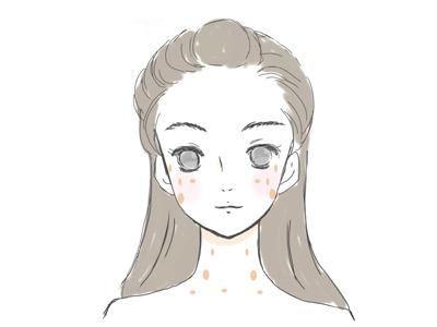 老人性色素斑の画像