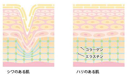 コラーゲン減少の画像