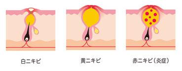 赤ニキビと黄ニキビの画像