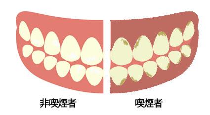 喫煙者の歯茎と歯の画像