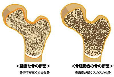 骨粗しょう症の画像