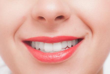女性の歯の画像