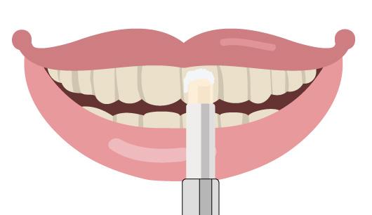 歯の消しゴムの画像