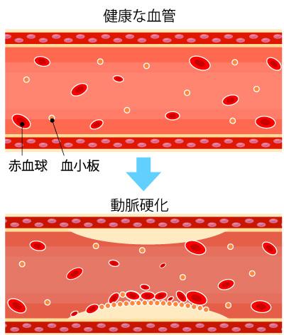 動脈硬化の画像