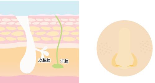 乾燥毛穴の画像
