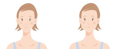 頬の筋肉を鍛えるエクササイズの画像